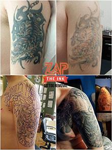 Zap The Ink Tattoo Removal - BELFAST - Belfast Tattoo Removal, Zap ...